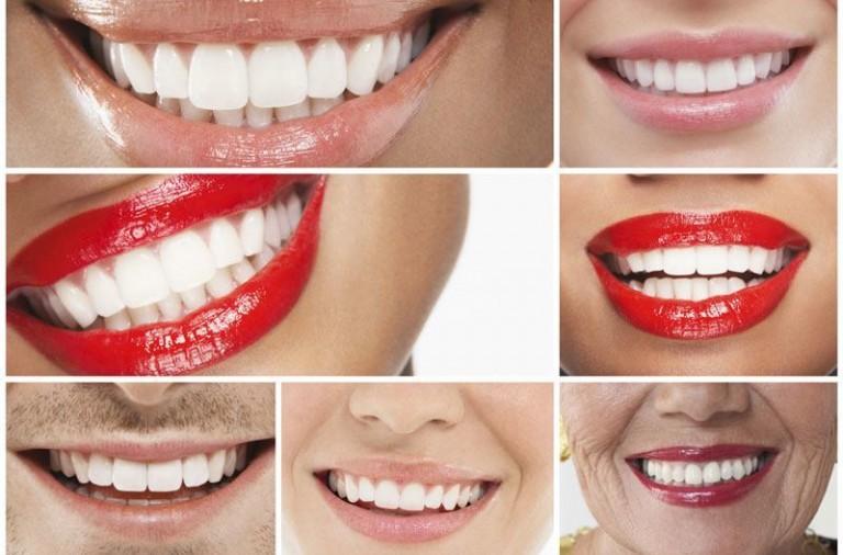 wybielanie zębów - białe zęby